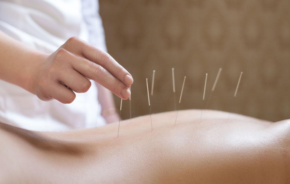 L'acupuncture, Faire de l'acupuncture, qu'est ce que l'acupuncture, pratiquer l'acupuncture, holissence, bien être, se relaxer, énergie positive, acupuncture et énergie positive